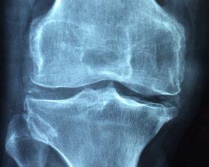 dolori articolari articolazione artrite