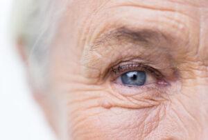 Ppraticare sport aiuta a prevenire lo sviluppo del glaucoma